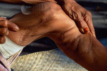 Leg Injuries Bitten By Komodo Dragon, Island Of Rinca, Near Komodo, Indonesia