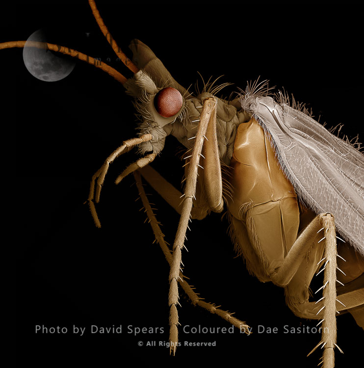SEM: Caddis Fly, Order Trichoptera; Magnification X 20 At A4 Print Size