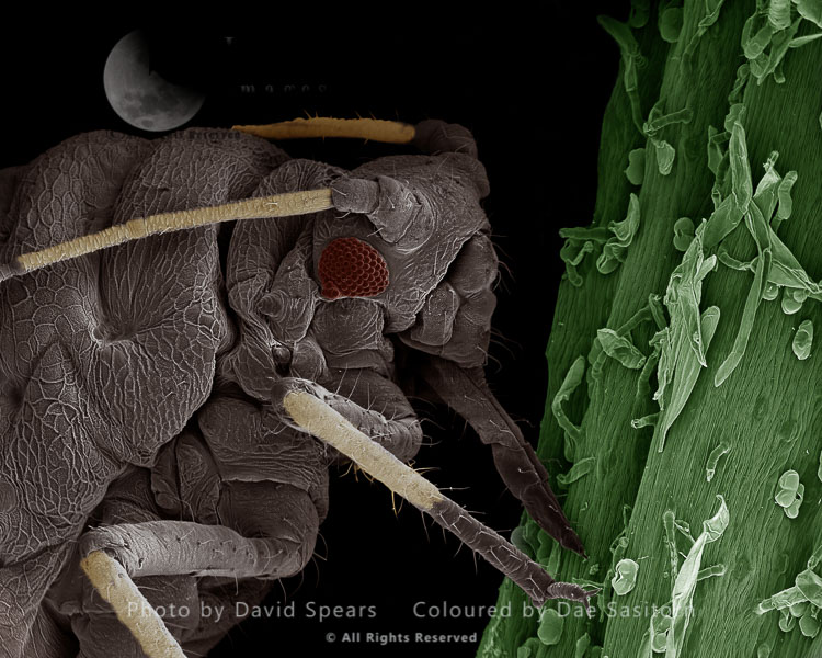 SEM: Black Aphid, Aphis Sp. ; Magnification X 220 At A4 Print Size