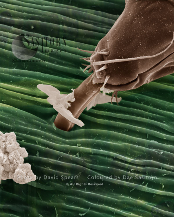 SEM: Black Aphid, Aphis Sp.; Magnification X 6000 At A4 Print Size