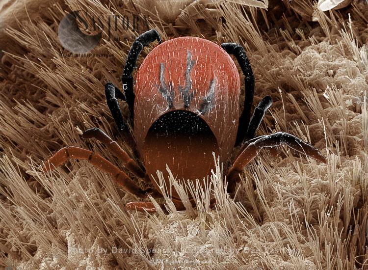 SEM: Black-legged Or Deer Tick, Ixodes Scapularis; Magnification X 50 At A4 Print Size