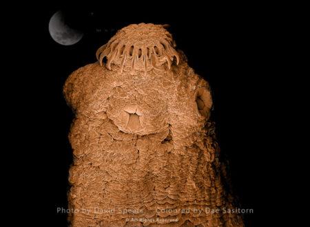 Tapeworm, Taenia Solium