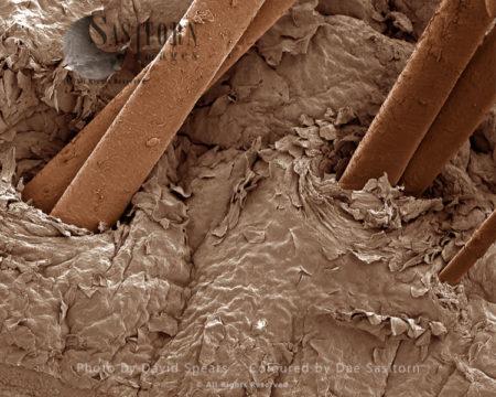 Human Skin With Hair Follicles