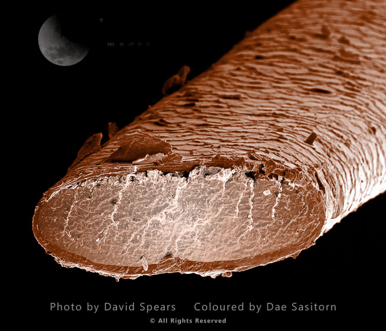 SEM: Human Pubic Hair(Magnification X 3000 At A4 Print Size)
