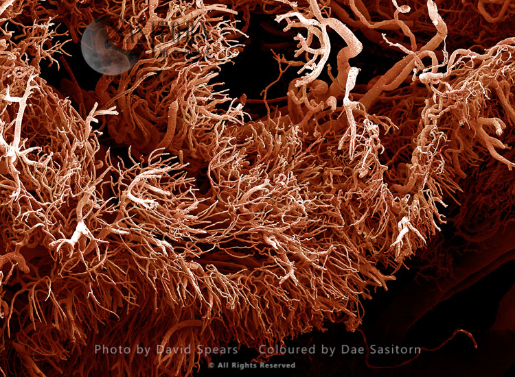 SEM: A Corrosion Cast Of A Gut Tumour. Liquid Plastic Is Injected Into The Blood Vessels; It Solidifies And The Tissues Are Dissolved Away Leaving A Cast Of The Blood Supply; Magnification X 100  At A4 Print Size