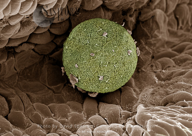 SEM: Human Ovum In Fallopian Tube: Magnification X 1,000 For A4 Size Print