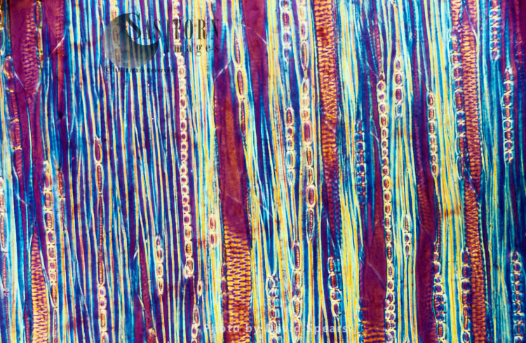 Light Micrograph: A Longitudinal Section Showing Xylem Elements Of A Ribes Sp. Stem
