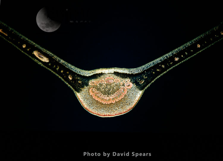 Light Micrograph: A Transverse Section Of A Fig Leaf
