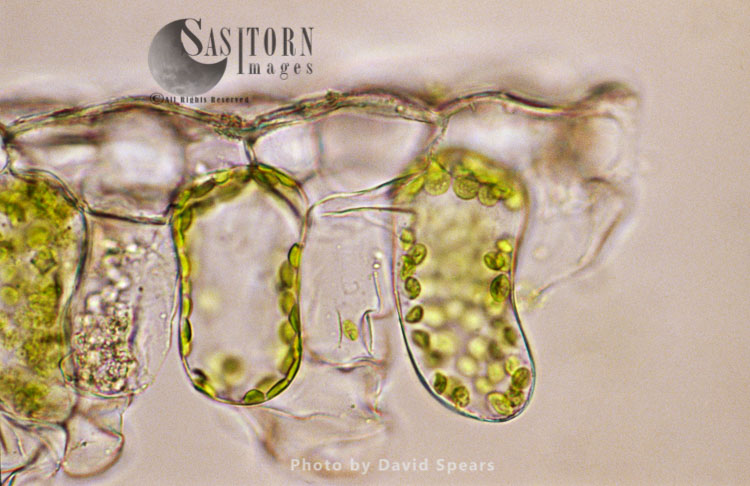 Light Micrograph: Plant Cell Chloroplasts – The Site Where Photosynthesis Takes Place